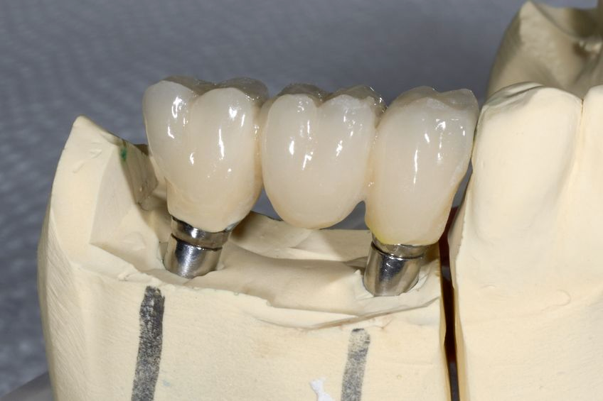 crowns and inlays feature image