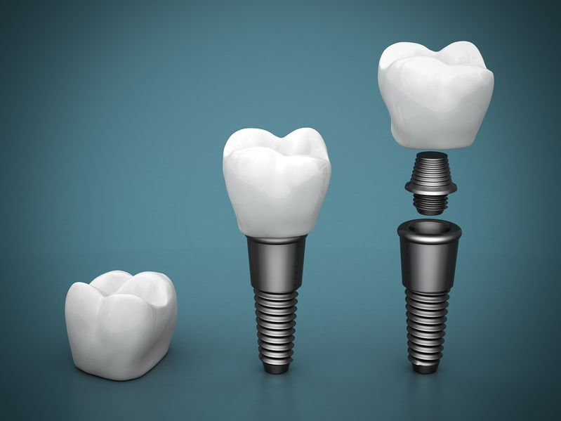 dental implants feature image
