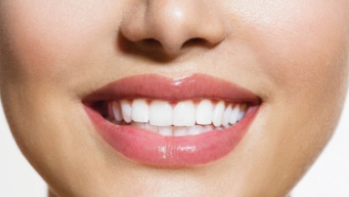teeth-whitening-white
