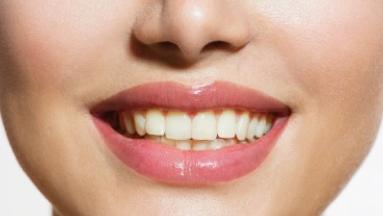 Teeth whitening yellow teeth